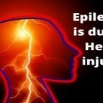 What is the meaning of epilepsy and it's diagnosis and symptoms?